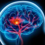 علل اصلی سکته مغزی و قلبی